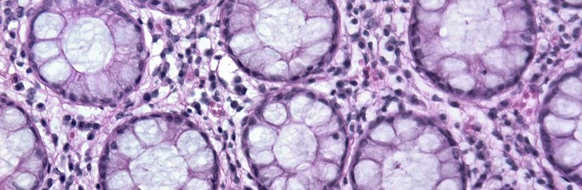 Aptuit | Histopathology