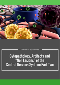 Aptuit   Cytopathology, Artifacts and 'non-lesions' of the CNS: Part Two