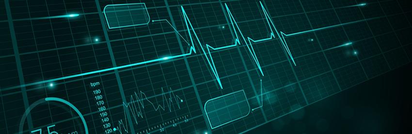 Aptuit | In vitro electrophysiology