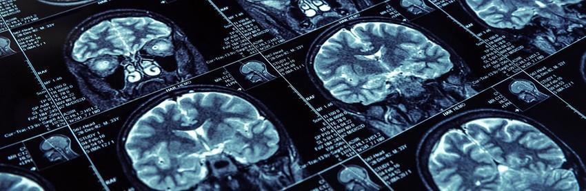 Aptuit | Neuroscience